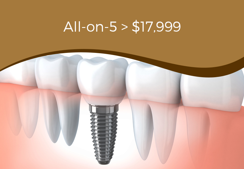 All-on-5 Dental Implants