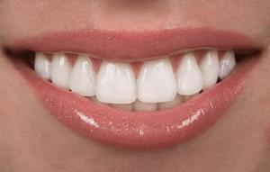 DRKHAN_DentalVeneers