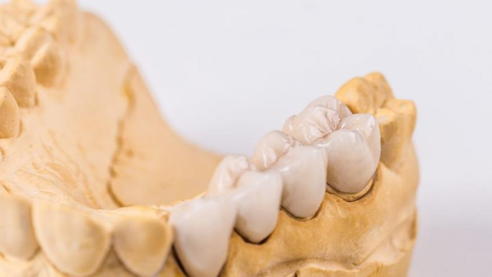 about dental bridges