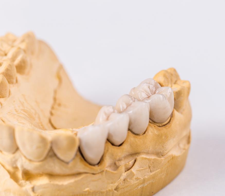 about dental bridges